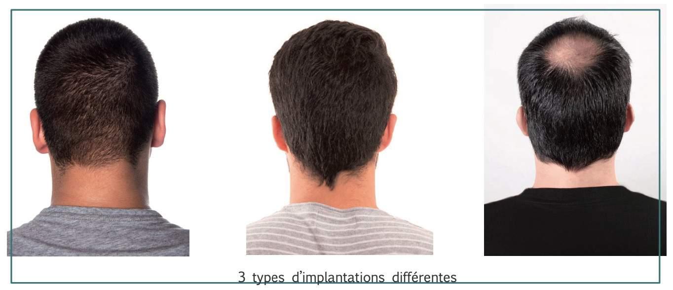 la_coupe_homme_methode_globale_diagnostic_cheveux_et_barbes_n°2